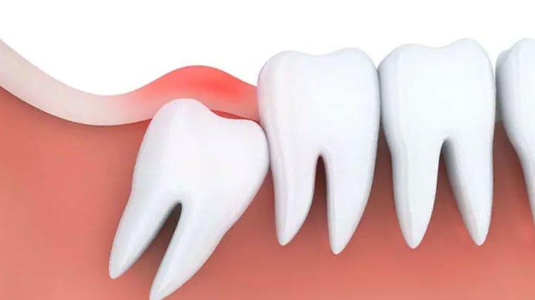 20'lik diş ağrısı enfeksiyona sebep olabilir