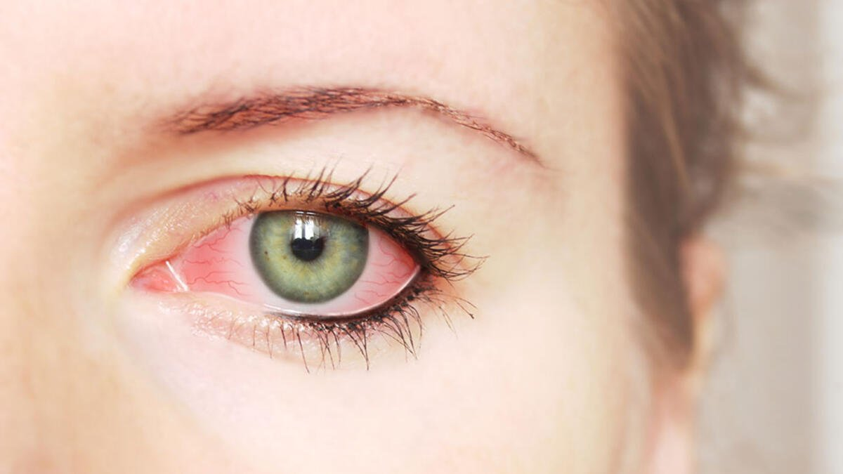 Photo of Göz Kuruluğu Sağlığınız Hakkında Uyarıcı Olabilir0 (0)
