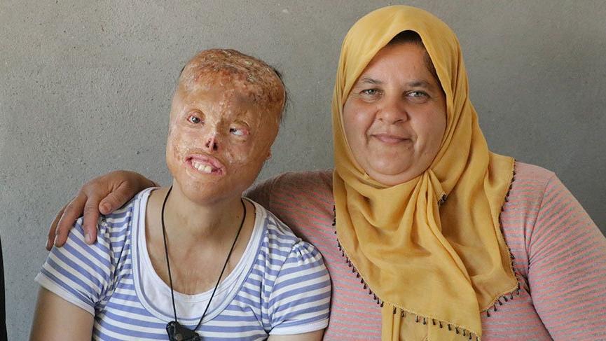 Photo of Sağlık Bakanlığı Leyla İçin Hazır0 (0)